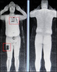 Rapiscan image (BBC)